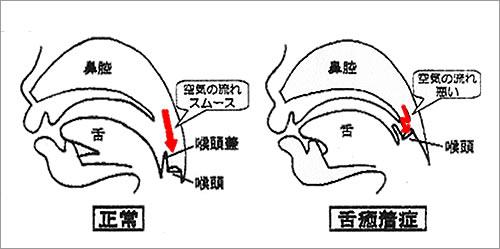 口腔内の状態